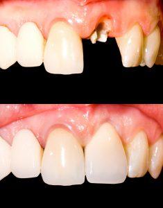 Stift og krone er eksempel på avansert tannbehandling.