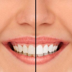 Tannbleking kan kombineres med estetisk tannpleie.
