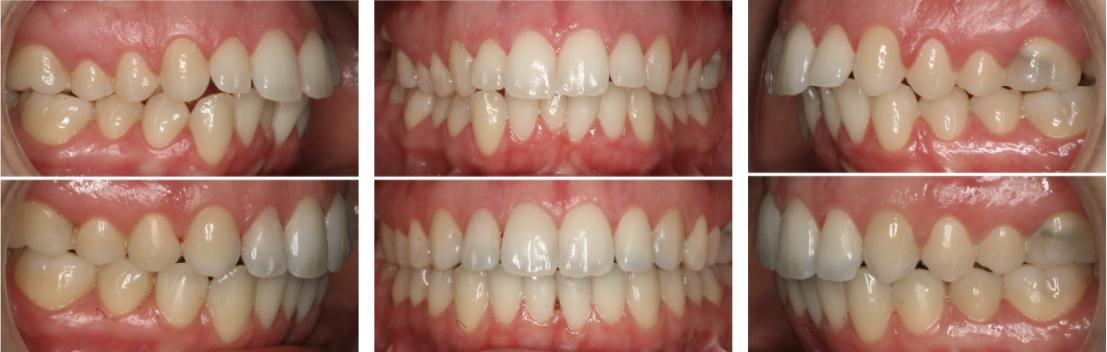 Før og etter behandling med usynlig regulering