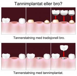 Forskjell på bro og implantat.