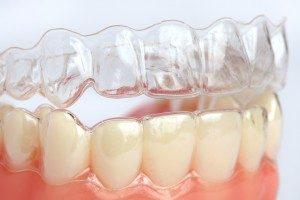 Osynlig tandreglering är möjligt för vuxna patienter.