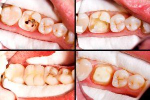En rotfylt tann bygges opp med krone.