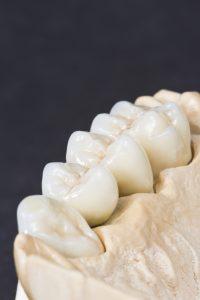 En tannbro kan erstatte tapte tenner.