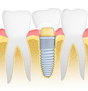 Et implantat av tann fungerer som en riktig tann.