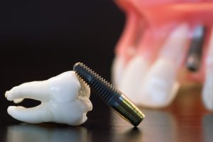 Erstatt tapte tenner med tannimplantat.