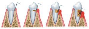 Ulike stadier av tannkjøttbetennelse.