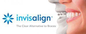 Usynlig tannregulering med Invisalign.